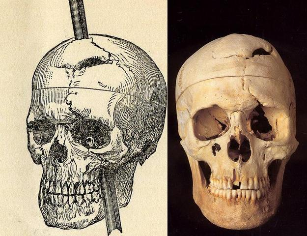 Phineas Gage suffers brain damage- area of brain correlated to personality