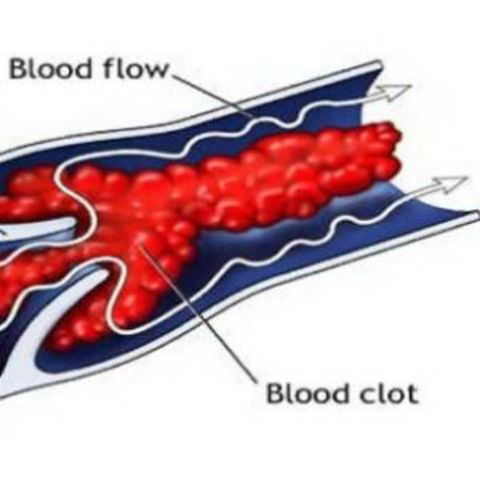 Discovery to prevention for blood clotting