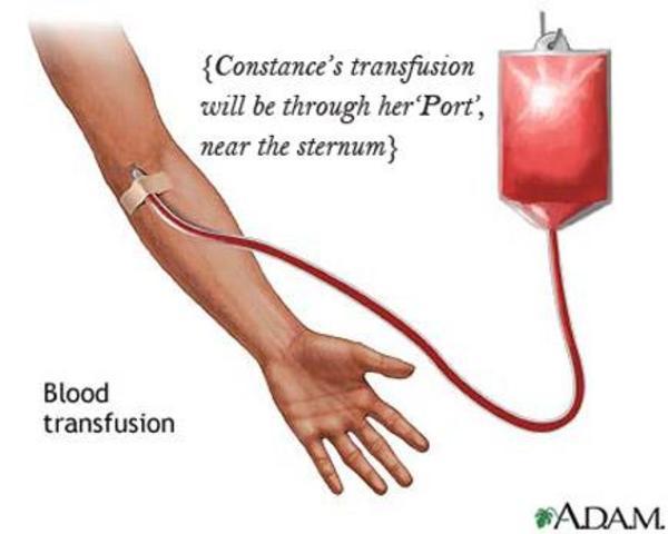 CE. Cross matching transfusion