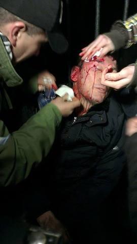 в жестоком столкновении с милицией пострадали люди, в том числе депутаты, журналисты и случайные прохожие