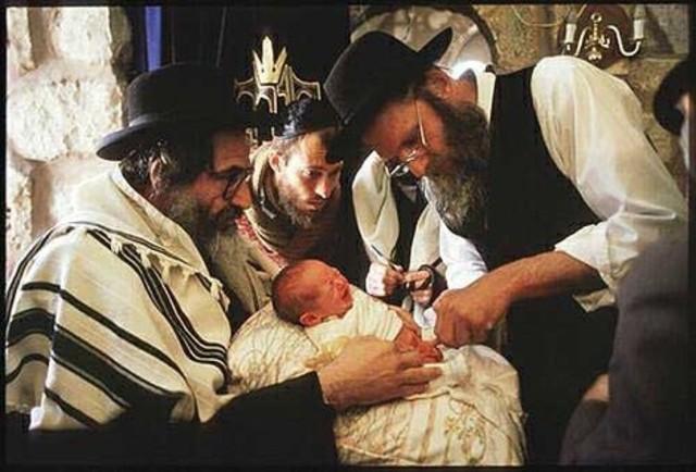 Circumcisions