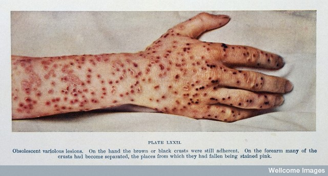 Small Pox's gets Big