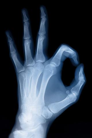 Открытие рентгеновских лучей