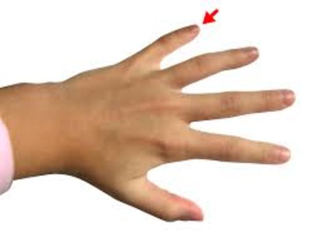 Slammed My Finger (Biosocial)