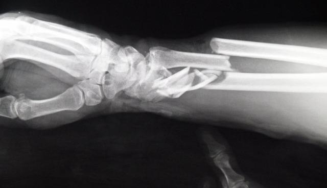 I Broke my Wrist
