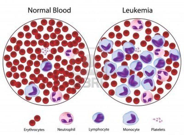 Maternal Grandmother gets Leukemia