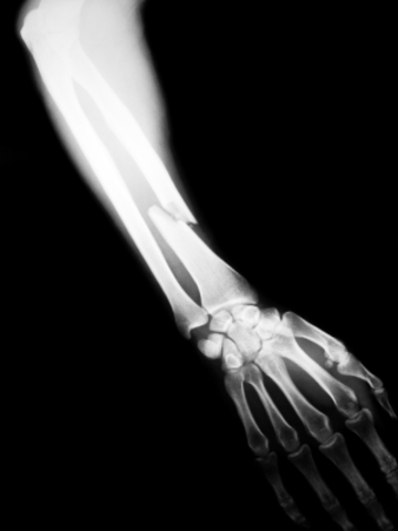 I Fracture My Arm