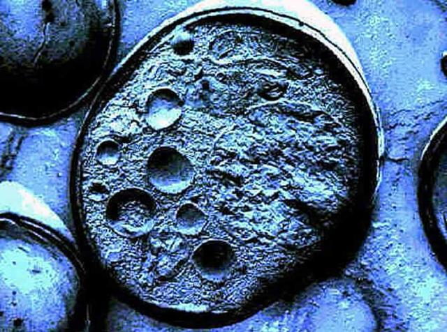 Extracción de celulas madres