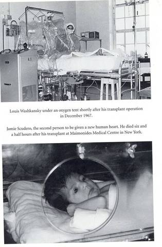 Baby Fae Recieves a Baboon Heart Transplant