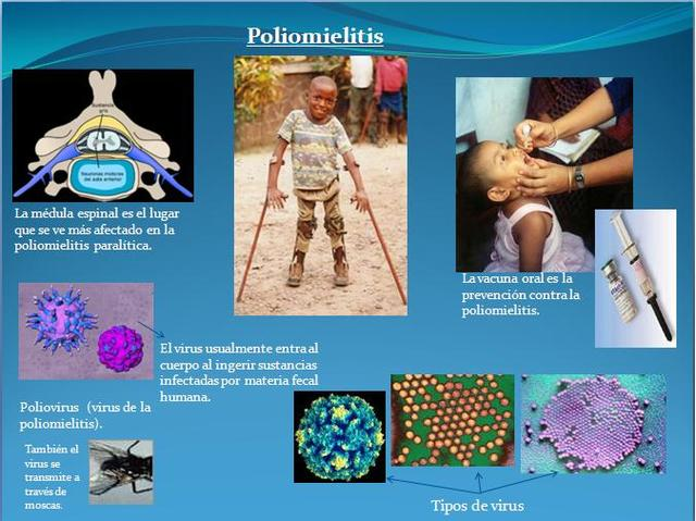 Primera vacuna Contra  poliomielitis