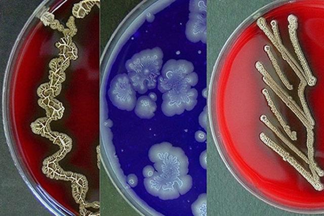 Comceptos de diversidad  de morfologias  poliomielitis