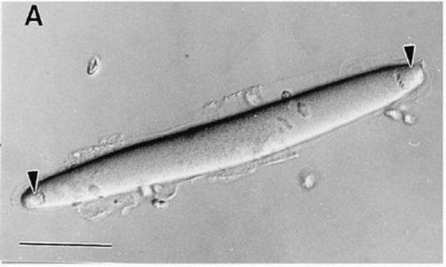 Epulopiscium fishelsoni