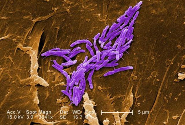 se descubre el proceso de esporulación en Mycobacterium