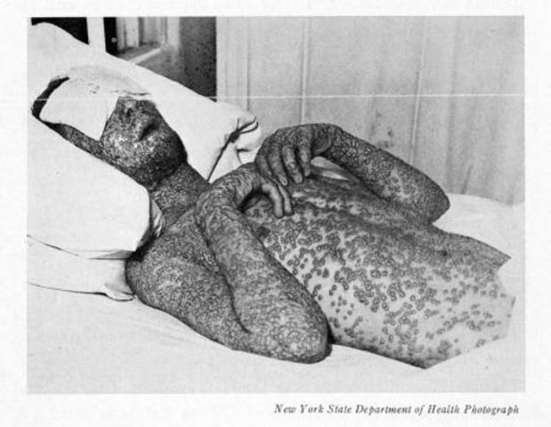 The smallpox eradication program was launched