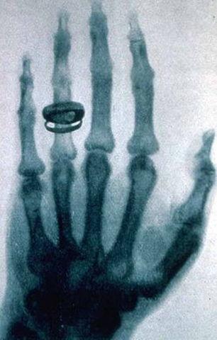 Invencion de los rayos x