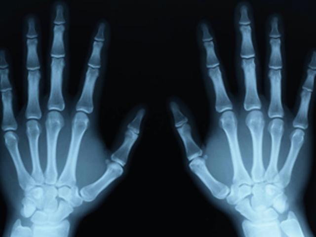 Los rayos x causan mutaciones