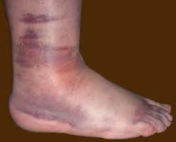 Elie's Swollen Leg