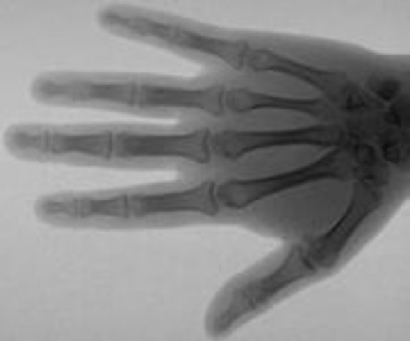 Рентген: катодолучевая трубка