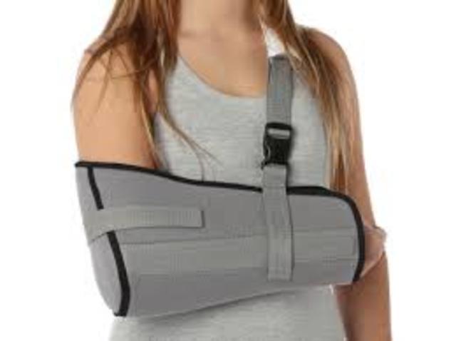 Un brazo roto