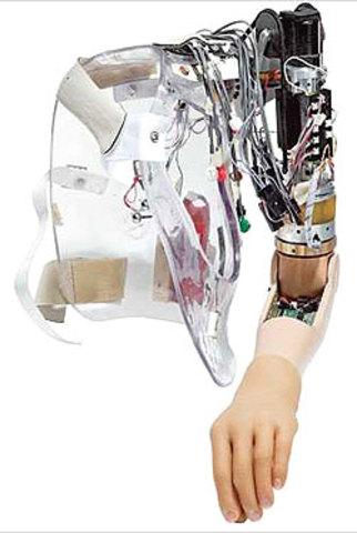 Advancing Artificial Limbs