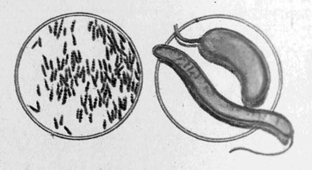 El Mycobacterium tuberculosis.