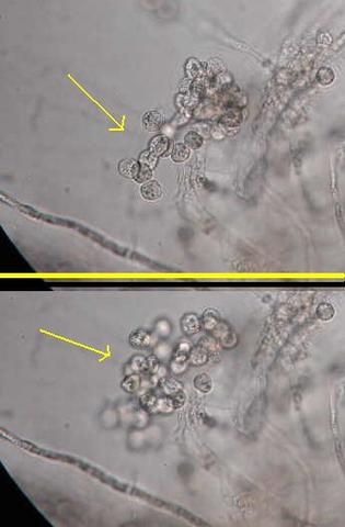 hongo (Phytophthora infestans) que produce la podredumbre de la patata.