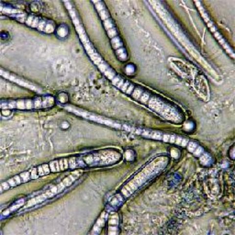 Robert Koch demuestra que el carbunco o ántrax es causado por Bacillus anthracis