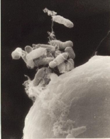 Beijerinck aísla bacterias fijadoras de nitrógeno de los nódulos presentes en las raíces de leguminosas.