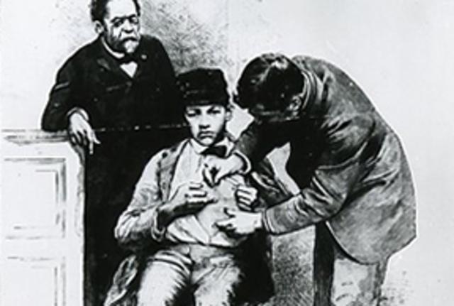 desarrollo de la primera vacuna contra la rabia