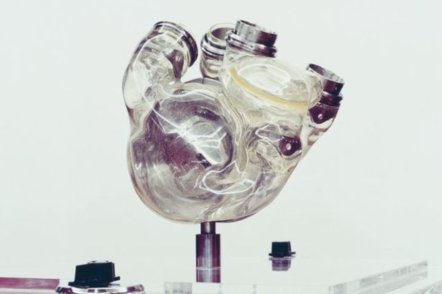 Total of 1,413 Implants of All Artificial Hearts