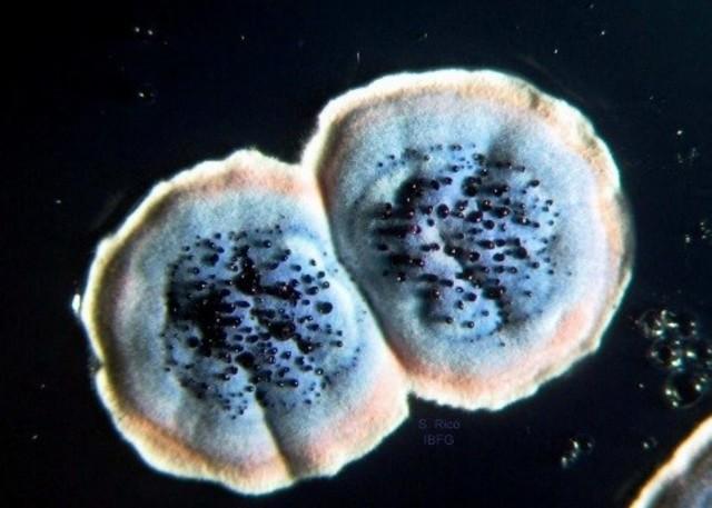 Streptomyces coelicolor
