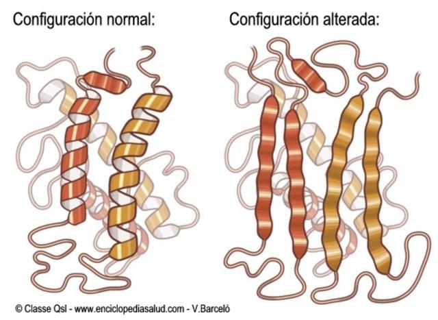 Enfermedad por prion