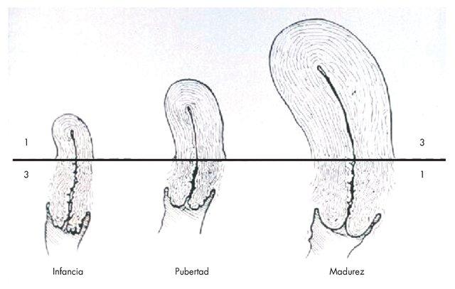 Crecimiento del escroto y testículos.