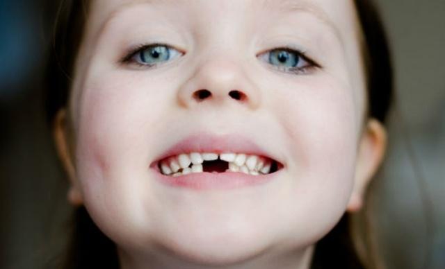 Caida de los dientes de leche