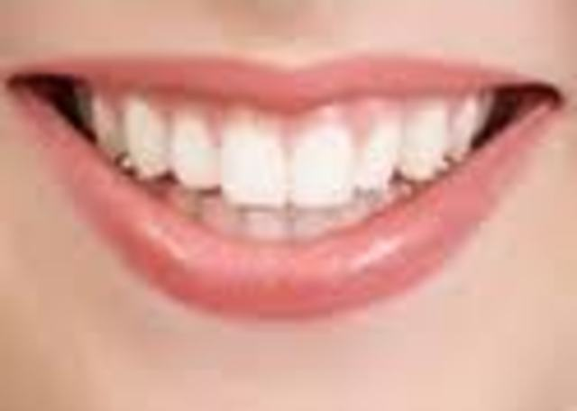 Mouth Surgery