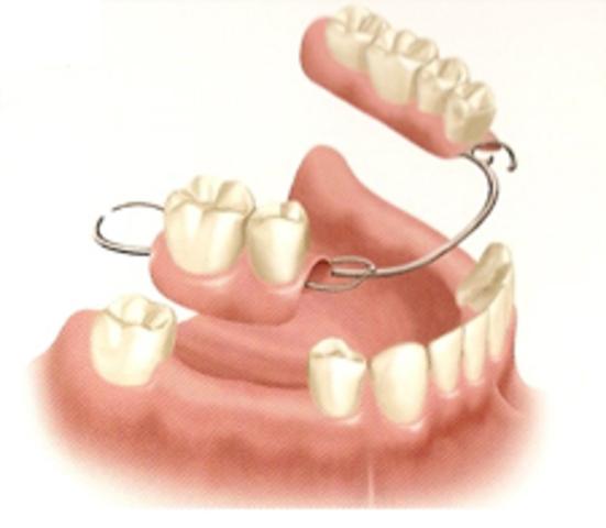 False teeth are created