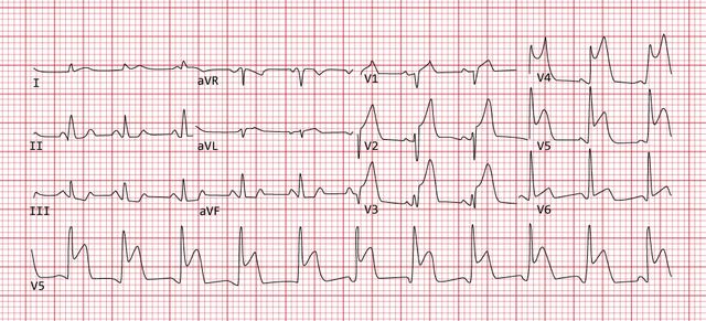 12-lead electrocardiogram