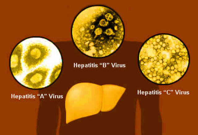 Hepatitis A and B Discovered
