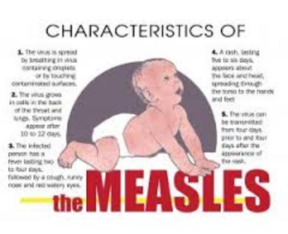 American Measles Outbreak Continues