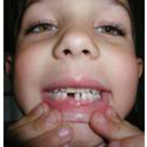 Lost my first baby tooth..