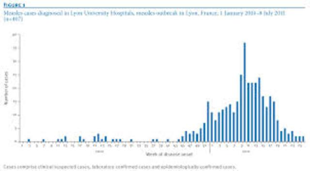 Measles  Outbreak in France