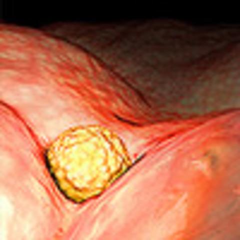 Week 4: Implantation