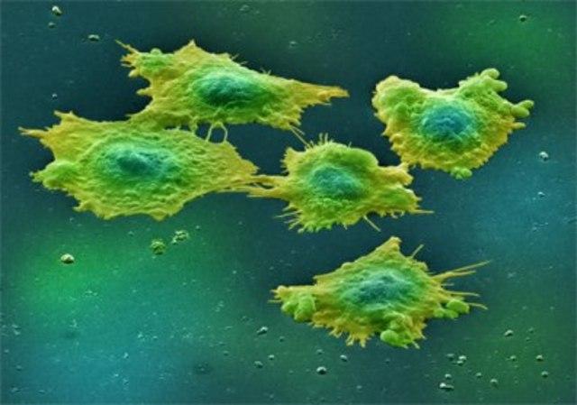Primera evidencia de células madre de cáncer de colon humano