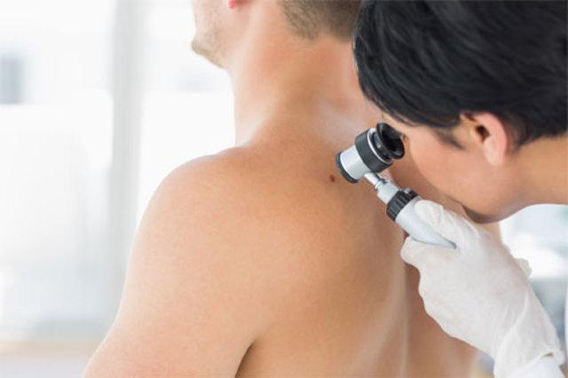 Baseline Skin Exam