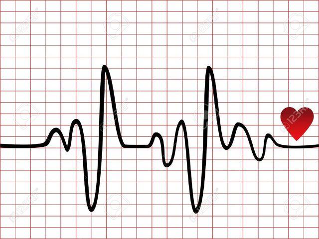 Baseline EKG
