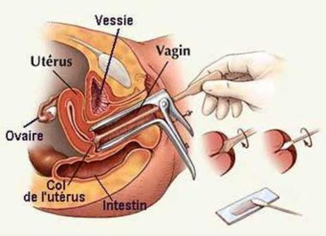 Gynecologist Check Up