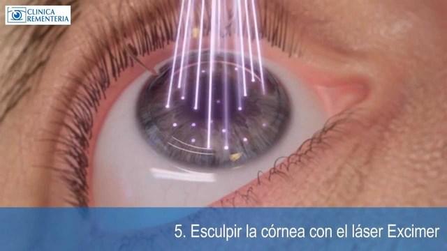 Cirugias con Laser