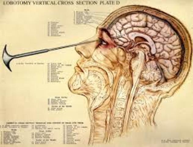 Lobotomy Comes to the United States