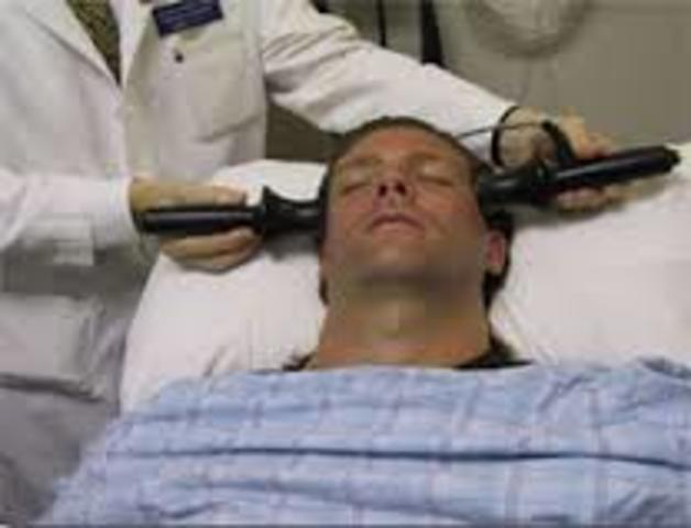 Electroconvulsive Therapy Begins