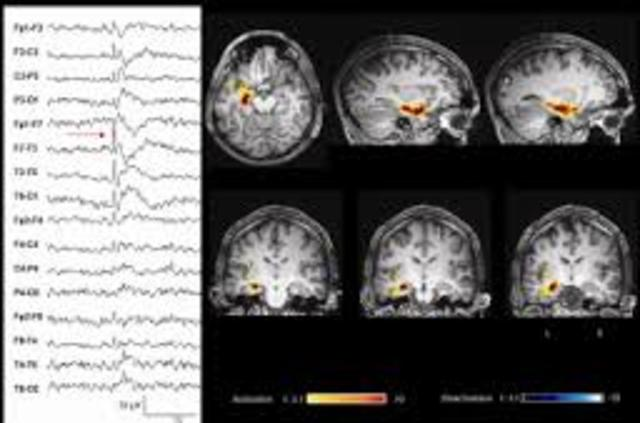 Epilepsy and the Functional Anatomy